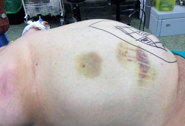 operacion herniation epigastrica malla